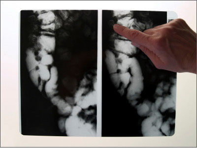 /media/bowel-disease/library/xray-colon-point.jpg
